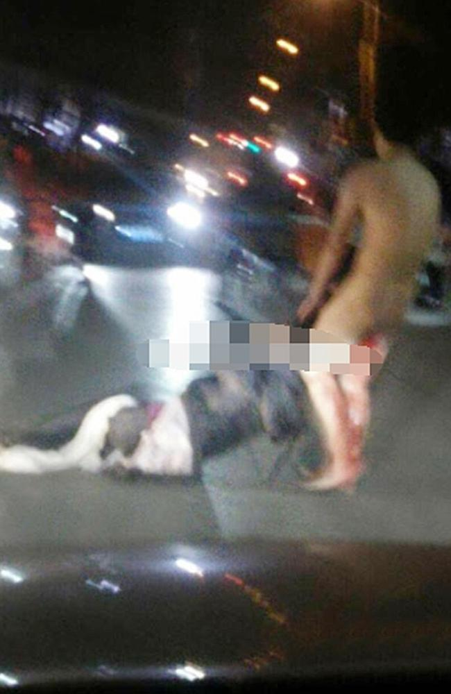 Despite bleeding profusely, the victim managed to chase his wife after his attack and fought with her outside the hospital. Image: Central European Network.